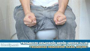 tromboze hemoroid, basur boğulması