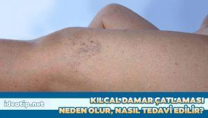 kılcal damar çatlaması tedavisi