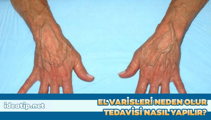 el varislerinin tedavisi nasıl yapılır