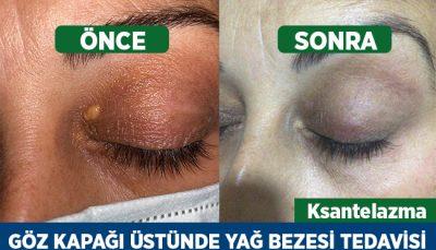 Ksantelazma göz kapağı üstünde yağ bezesi tedavisi